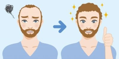All About Hair Transplant Surgery: Average Cost, Success Rate; Details